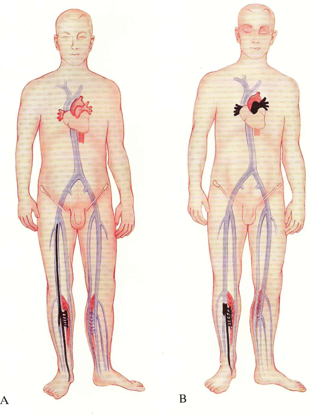 Deep venous thrombosis of the lower extremity with massive pulmonary ...