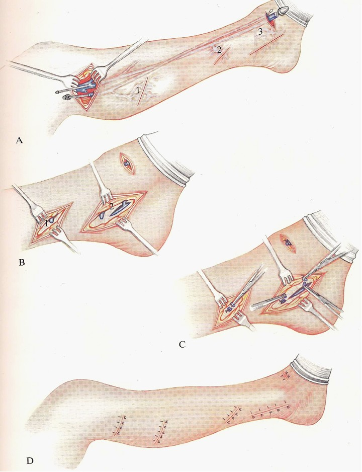 Interruption of incompetent distal posterior tibial communicating veins of left ankle
