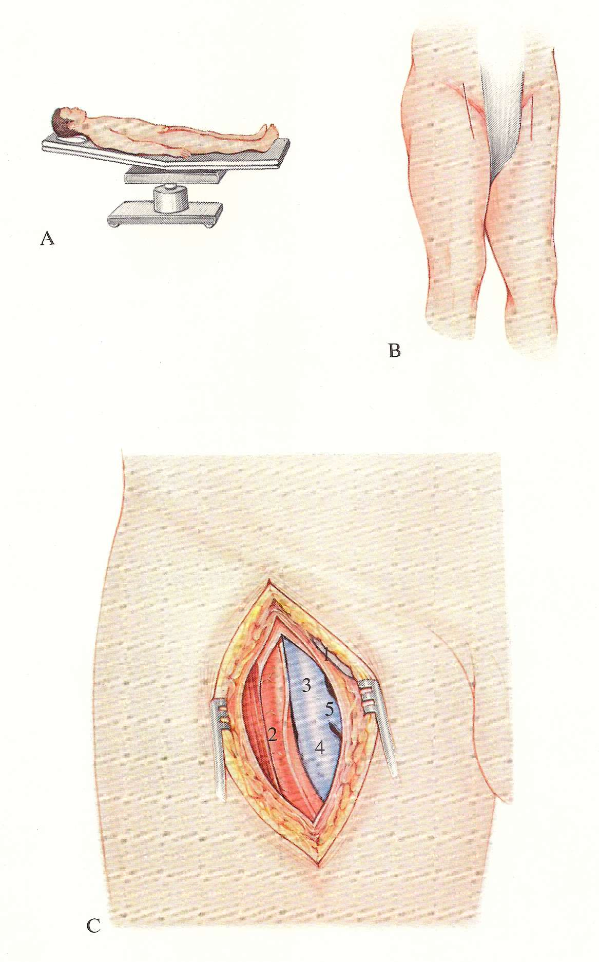 Proximal superficial femoral vein interruption