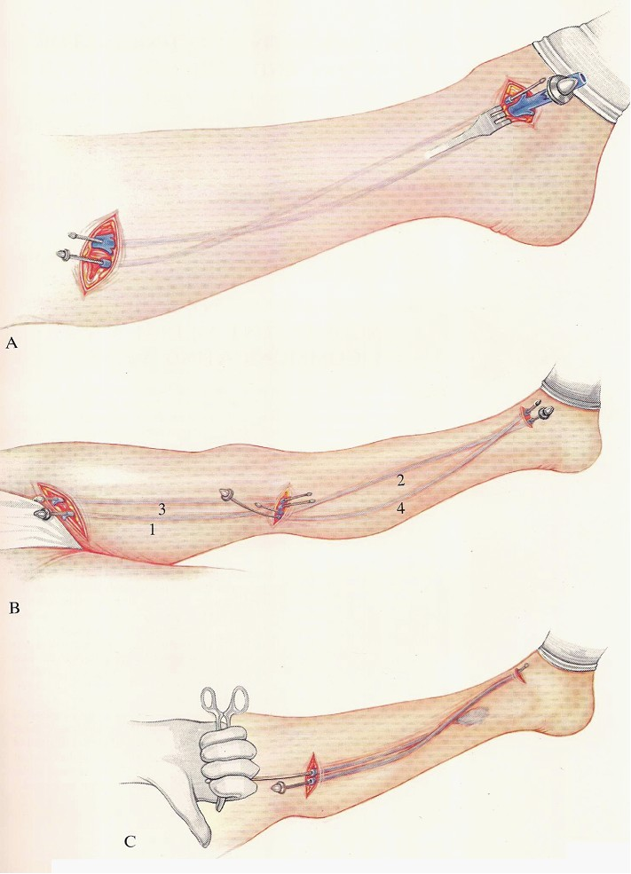 The Operative Technique For Ligation And Stripping Of Long Saphenous