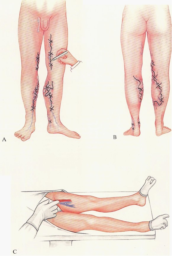 The operative treatment of varicose veins of the lower extremity