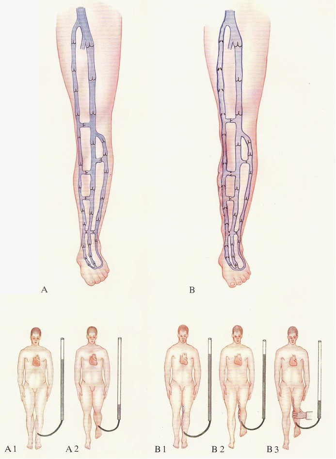 Varicose veins - The Pathophysiology