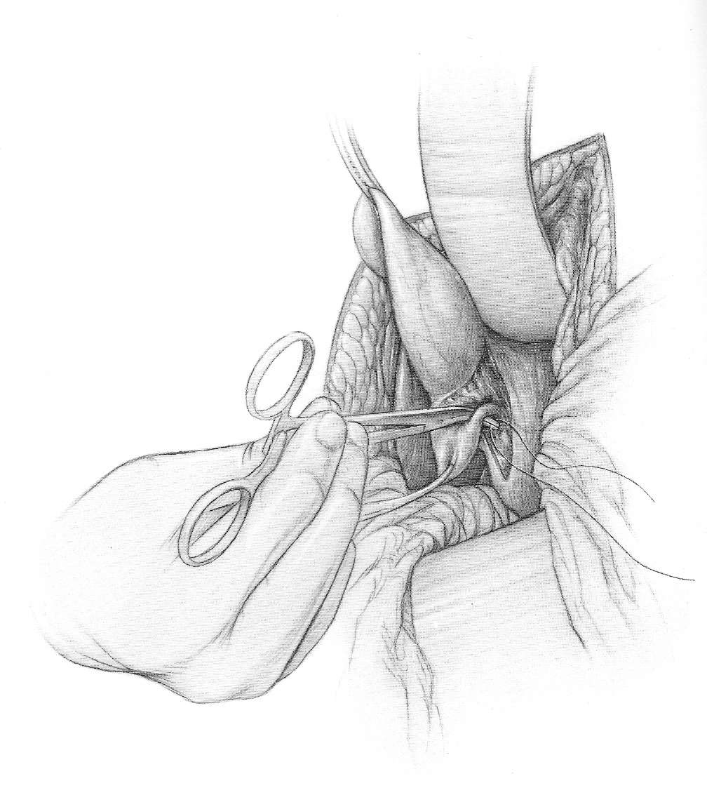 The gallery for --> Gastrocolic Ligament